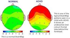 attention-deficit-disorder-EEG